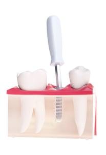 implant-dental-model_Q1e6GMN